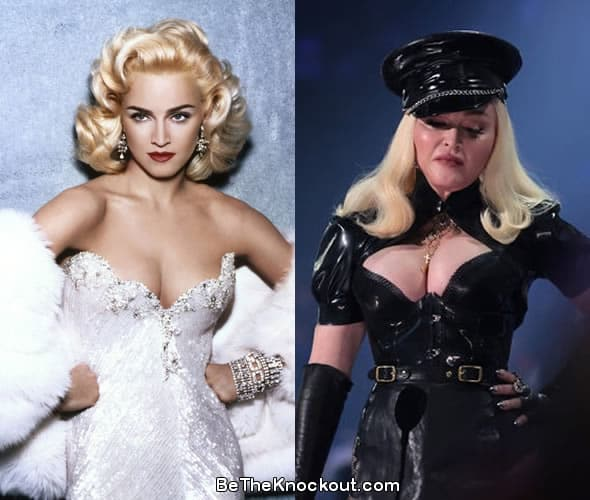 Madonna boob job before and after comparison photo