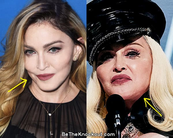 Madonna botox before and after comparison photo