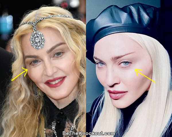 Madonna eye lift before and after comparison photo