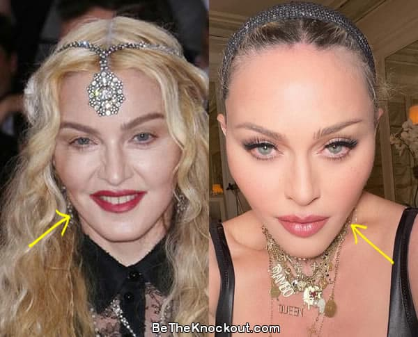 Madonna facelift before and after comparison photo