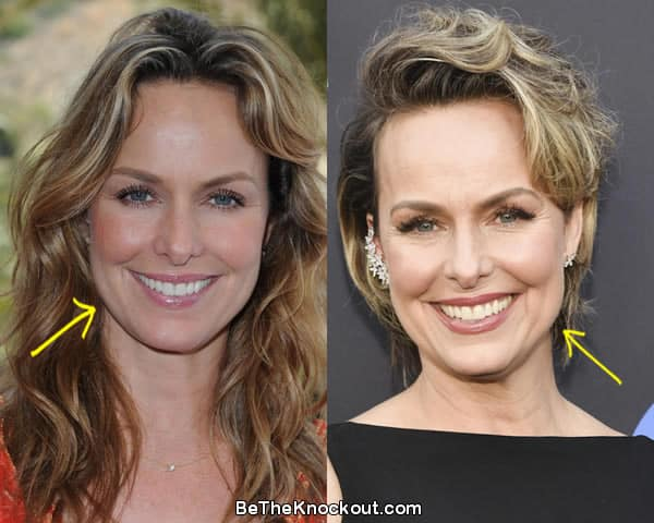 Melora Hardin botox before and after comparison photo