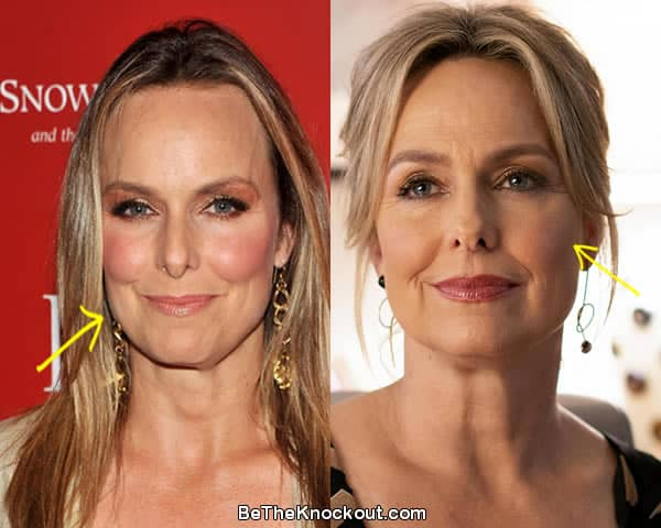 Melora Hardin facelift before and after comparison photo