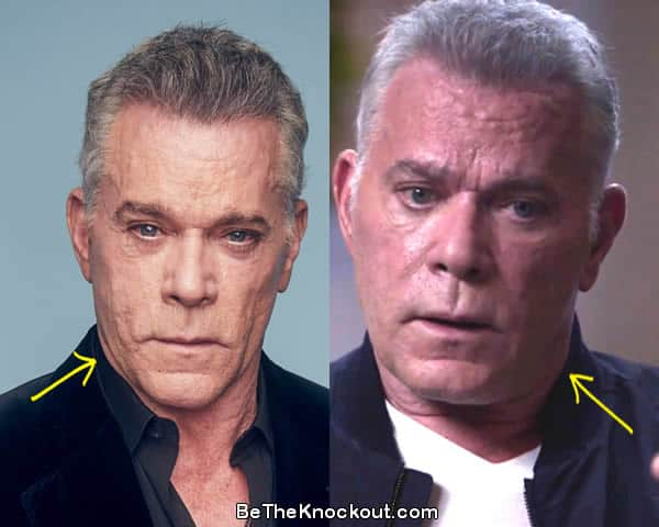 Ray Liotta botox before and after comparison photo