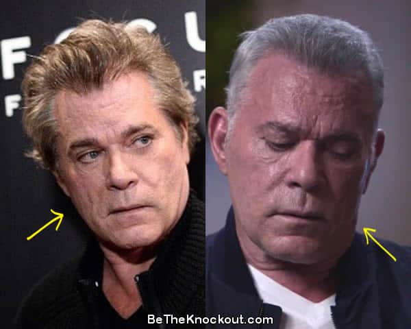 Ray Liotta facelift before and after comparison photo