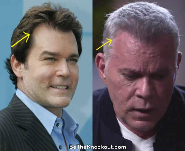 Ray Liotta hair transplant before and after comparison photo