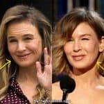 Renee Zellweger facelift before and after comparison photo