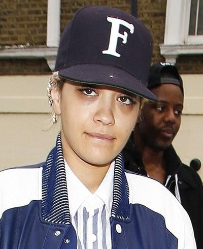 Rita Ora has dark circles under her eye bags